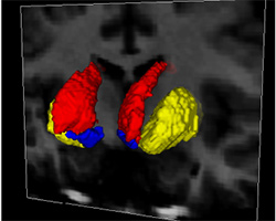 Segmentation of a brain MR image by an algorithm developed at the VPA and SPIS Laboratories